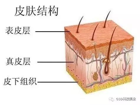 美容 产后恢复 葆蓓妈咪产后恢复加盟   皮肤分为表皮层,真皮层,皮下