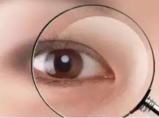 易視界視力保健