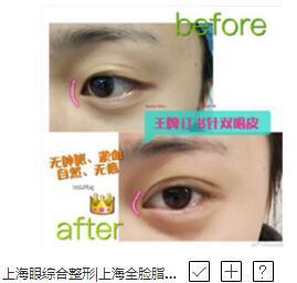 上海赛美瑞医疗美容双眼皮图片