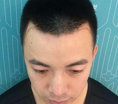 上海雍訸植发发际线