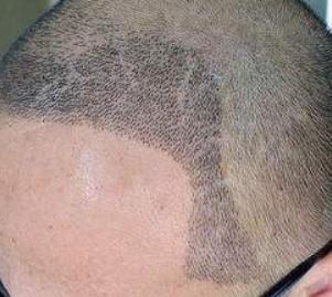 长沙美来医疗美容植发科加盟