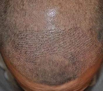 长沙美来医疗美容植发科植发