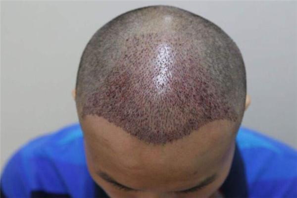 长沙美来医疗美容植发科秃顶