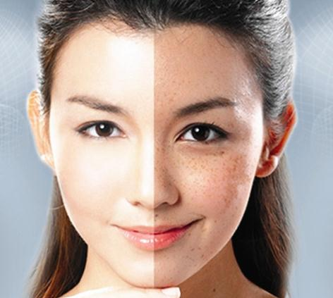 李中医祛斑产品对比