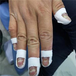 蕙樂百靈灰指甲