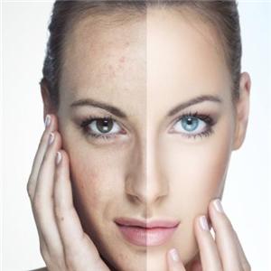 润美珈韩式皮肤管理对比