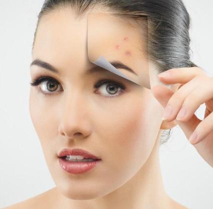 初美問題性肌膚修復模特