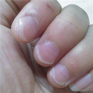 甲清灰指甲品牌
